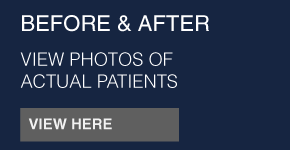 before & after | view photos of actual patients | view here